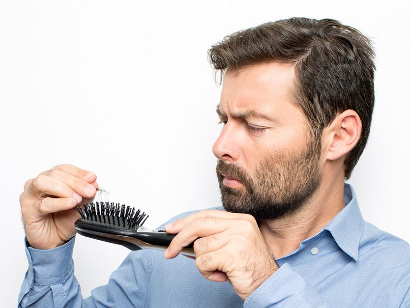 Caduta capelli, quando preoccuparsi: il rapporto fra eredità e alopecia