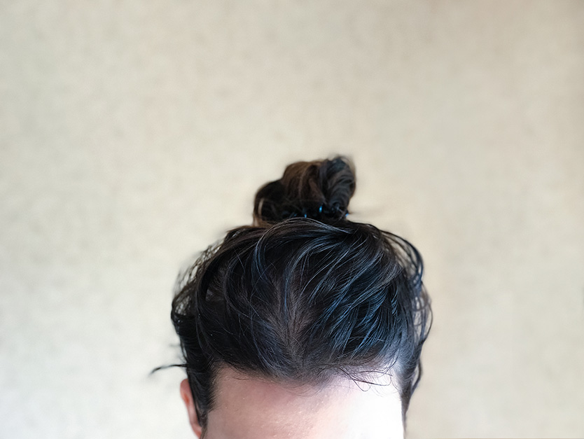 capelli grassi cause