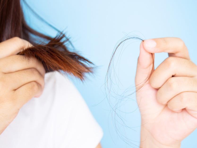sintomi caduta capelli