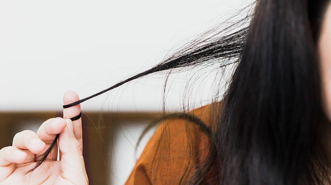 Caduta capelli, quando preoccuparsi: la tricotillomania provoca calvizie precoce.