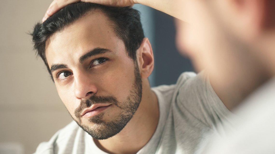 perdita capelli stress