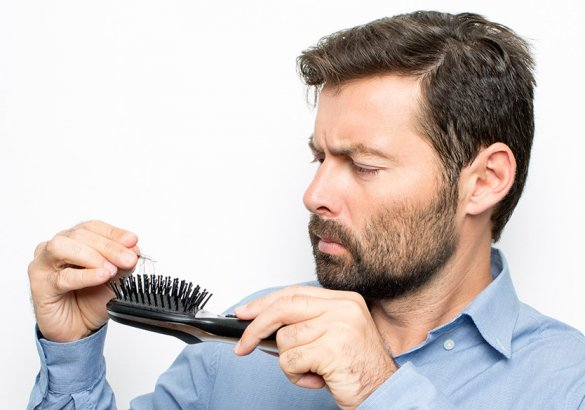 Hair loss, when to worry: inheritance and alopecia