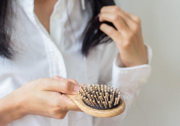 Caduta capelli donne: cause e classificazione