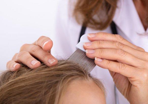 Come prevenire i pidocchi in modo naturale? I rimedi più efficaci e sicuri per i capelli